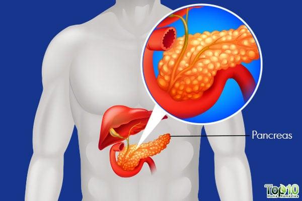 胰腺炎:病因、症状和自然缓解